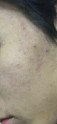 乾燥肌?風呂上がりカサカサする。あとニキビ治したいです 皮膚科に行かないと治らないですか?カサカサを改善するには乳液がいいって本当ですか。