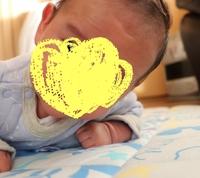 赤ちゃん おでこ ぶつけ た