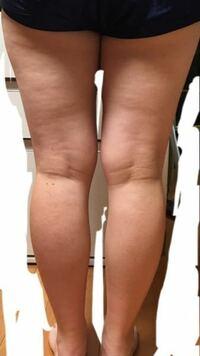 足太いですか?(太いですよね…)どうしたら足細くなりますか?高校生、女です。