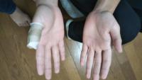 中学男子の3年生です 休み時間に外でボール遊びをしていて突き指をしてしまいました ドッジボールをしていたので友達のかなり強い(結構強い子)ボールが右手の親指に当たってしまいました  学校が終わった頃には整...