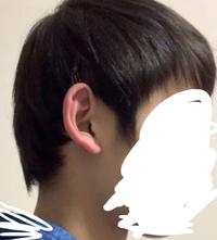 これ絶壁頭ですよね? こんな頭でも似合う髪型はありますか? 髪質は軟毛で細めです。
