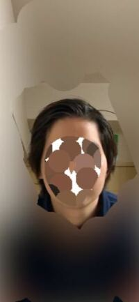こんにちは。私は頬骨が横に出てることにコンプレックスを持っています。画像の通り、頬骨だけがポコっと出ているというよりは、輪郭自体がナスのような形をしており、さらに左右非対称なのがとても嫌です。 この...
