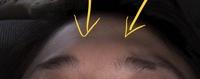 50枚。眉頭の上の前頭筋が盛りあがっています。 この筋肉を減らす整形またはマッサージありますか? 眉間にヒアルロン酸を入れてもおでこの半分だけ盛りあがるだけで納得できないです。