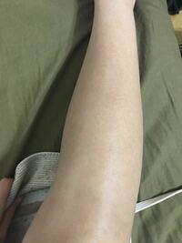 お見苦しものすみません汗 脚の毛穴についてです… これって毛穴目立ってますか?  一応、ちゃんとしたiphoneの普通のカメラで撮ったのですが… カミソリ負けで足首らへんの下の方が赤いブツブツが少し出来てしまって…どうやったら治りますか?