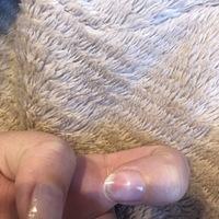 ジェルネイルオフをしてもらったら内出血?のように爪がピンクになってしまい少し痛みがあります。どうすればいいでしょうか?
