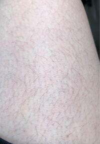 女です。1ヶ月沿っていない足です。毛が濃いと思うのですが、濃いですか