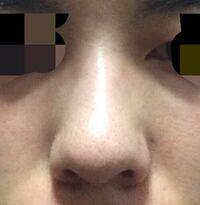 鼻筋がなくて団子鼻なのがとてもコンプレックスです。 皆さんから見てこの鼻どう思われますか?