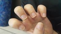小さい頃からずっと爪を噛むくせがあり、最近になってネイルをして噛まないようになりました。  伸びてきたのはいいのですが、写真の通り爪の先の白い部分が多くて嫌だなと思いました。改善す る方法はないので...