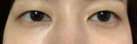 眼瞼下垂について 二重埋没法のカウンセリングに行きました。 瞼の開きが悪い、眼瞼下垂だと言われ手術を勧められたのですが、埋没ではなく眼瞼下垂の手術をした方が良いのでしょうか?