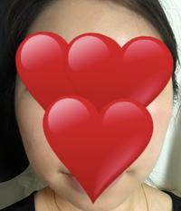 美容整形外科orエステの施術。小顔になりたいです。20代半ばの女です。  クリックありがとうございます。 頬骨が張っているのに合わせて、フェイスラインや頬にしっかり掴める脂肪があるので 、 美容整形を考...