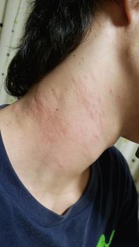 虫刺され?蕁麻疹? 何でしょうこれ!!  旦那が今日の朝から首に虫刺されのような、蕁麻疹のようなものが出来ました、とても痒いみたいです。 以前から胸あたりにも刺された跡があって、ダニかと思ったのです...