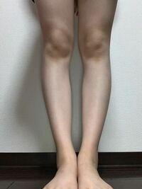 膝下のスネが外側に曲がっているように見えるのですが、真っ直ぐにする方法はありませんか??