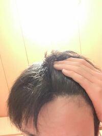 ここはM字の片側なんですが、なんかここだけ髪が少ないような気がします。禿げてきてますか?