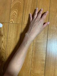 摂食障害です。この腕をみて、皆さんきもちわるいですか?知人に、腕がババアみたい、ガリガリ、気持ち悪いと言われました。