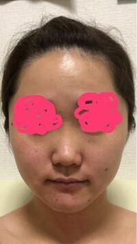 肌が本当に汚いです。 加工無しでiPhoneのカメラで撮りました。(室内)  品川スキンクリニックに行こうと思っています。  ほくろとシミを取れば綺麗になりますか?  赤みも気になるのですが、これは赤ら顔ですか?(頬)  あと他にどんな施術が合うと思いますか?  肌綺麗になってもブスとかはやめてください…
