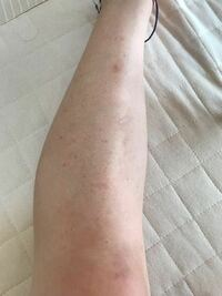 足の毛を抜いてたら足の毛穴が困難になったんですけど、どうしたら治りましすか?