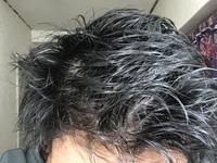 現在高校二年生です。髪を濡らすと地肌が見えます。これはAGAなのでしょうか