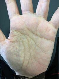 手のひらにシワが多いのが悩みです。親指付け根の格子のようなシワとか嫌で仕方ないです。手のひらって整形できるんですか?それに私の手相って長生きしすぎじゃないですか?見れるひと、手相見てください!