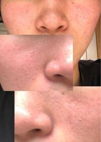 顔の赤み、肌荒れが治りません。 今年で19で3年前からなってます。 昔から乾燥肌で今は化粧水を毎日つけています。 洗顔も泡立ちが良いものを使っています。 しかし3年も経ちますが治る気配が一向にありません。...