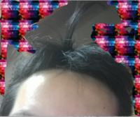 こういうクソきったない髪質の人はどうやってセット、おしゃれしたらいい? 髪まがっとるし、生え方もめっちゃくちゃ、ドストレートもあれば 天パもある  長さもバラッバラ、髪かたくて重いからあげててもすぐ...