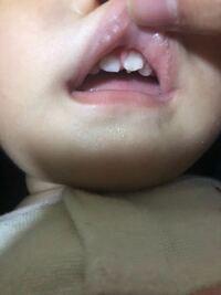 上唇 小 帯 切れ た