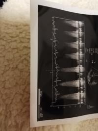 犬、12歳シーズーの心電図です。 この波形は不整脈ですか?  治療が必要な不整脈ですか? 降圧薬は飲んでいます
