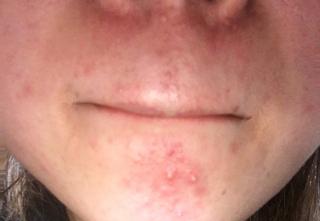 性 うつる 漏 脂 皮膚 炎