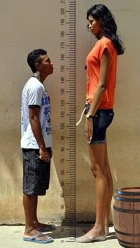 どっちが骨格太いでしょうか?やっぱり女性の方が太いでしょうか?