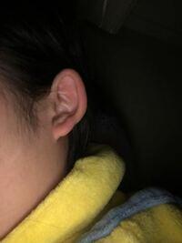 耳の周りが太くて悩んでます。軟骨のピアスこの耳したら変ですかね?あと改善する方法などあれば教えて欲しいです。