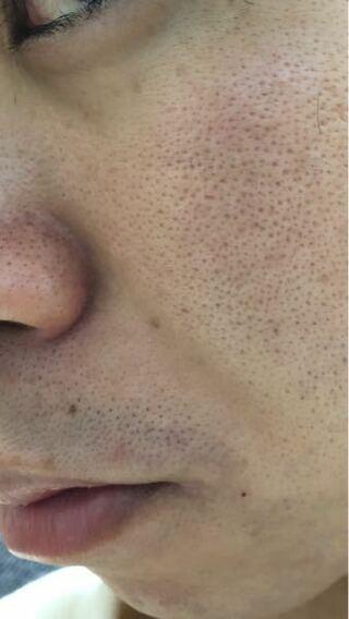 毛穴,グリシルグリシン,美容液,対処法,タイプ,洗顔,美容成分スペシャリスト