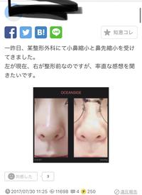 小鼻縮小と鼻先縮小をして写真左になったという写真をみて、私は元から左のような鼻なのですが、する必要ないと思いますか?