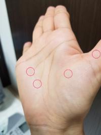 ぶつぶつ 透明 手のひら 手や足のブツブツ・皮むけ(汗疱、掌蹠膿疱症)