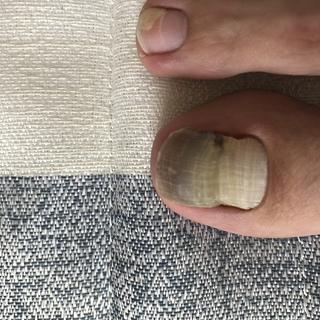 爪 垢 臭い 足 の