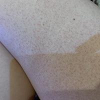 太ももの内側に画像のような斑点があるのですが、なにが原因かわかりますか? 今ダイエットをしていて、足のマッサージもしているのでその影響もありますかね? 同じ強さでふくらはぎもやって いるのですが、赤い斑点があるのは太ももの内側だけです。 今まで通りマッサージをしていても大丈夫だと思いますか?