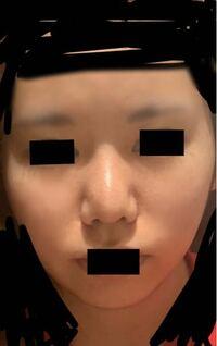 小鼻縮小してしまったんですが、小鼻切られ過ぎですか? 小鼻不自然ですか? ずっと病んでいます。