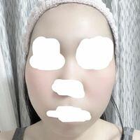 この輪郭だとたとえ痩せても顔はデブに見えますよね。。 本当に全てがコンプレックスです。 特に人中が長いことです。 顎無しです。 本当に辛いです。