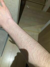 男子高校生です これくらいの腕毛でも剃った方がいいのでしょうか? 一時期剃ってましたが、どうせ生えてくるからと思いやめてしまいました。
