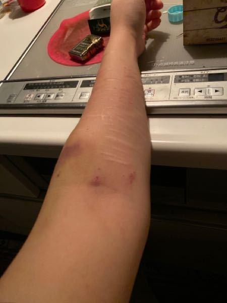 瀉血(自傷行為)について 最近暇さえあれば瀉血をしております。 腕は腫れ上がり、血が出なくなっ...