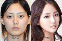 韓国では顎が尖っていて、顔の横幅がせまい人が多いですよね?それはフェイスラインをVの形に削っているからだと思います。日本も写真のように整形してくれる整形外科がありますか? またできるなら渡韓した方が...