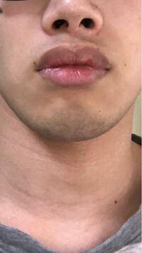 この髭は青髭で濃いと思いますか? (朝7時半に剃って夜の23時時点での状態です。) 男女問わず意見ください