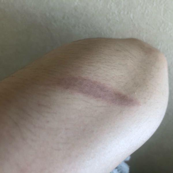 やけど 跡 残らない 処置 治す方法 女子高校生です。先日コテで腕を火傷してしまい、今時点で一...
