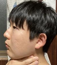 顎周りの脂肪が多すぎて横顔が不細工になります。 皆さんはどうやって、顎周りの脂肪をおとしていますか?