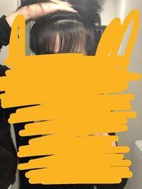 前髪あげた感じです。薄毛ですか? えむじはげになやんでます。