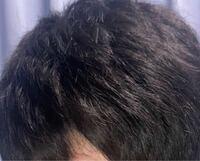 髪の毛がこのようにパサついているのですが、切れ毛、枝毛でしょうか。教えてください。