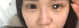 ヒアルロン酸注入,目頭あたり,影,鼻