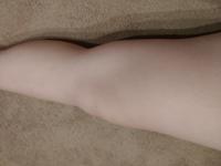 膝小僧の横にあるこのぽっこりお肉?はどうしたら落とすことが出来ますか?