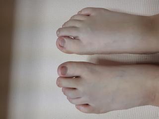 ハンマートゥ,限り扁平足,両足中指,スニーカー,治療