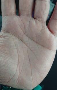 手相が気になってます。 薬指と小指のひし形と 薬指のx線はダメな手相ですか?(>_<)