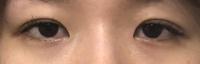 眼瞼下垂の症例です 保険適用で挙筋前転法を行う予定ですが 同時施術で目頭切開と目尻切開を提案されています。先生はとても丁寧に私に合った1番最善の施術を考えてくださっているので信じて お金を投資すれば...