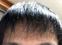 高校生です。 前髪が薄く感じるんですけど ハゲてますか? 元々おでこは広いです。